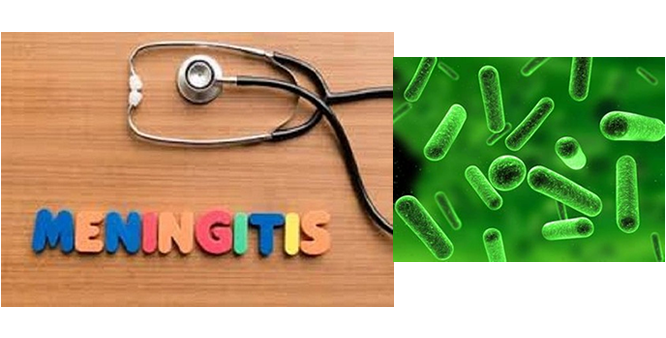 Tackling cerebro-spinal meningitis menace: Wither the Nigerian Academy of Science?