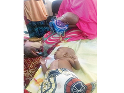FMC separates conjoined twins in Yola