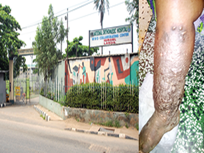 Visit National Orthopaedic Hospital, lose your limbs –Patients