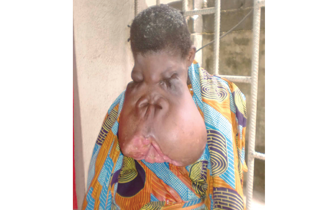 Facial tumour patient, deserted by husband, seeks N5m for surgery