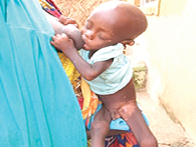 Our son is dying slowly  of malnutrition – Parents